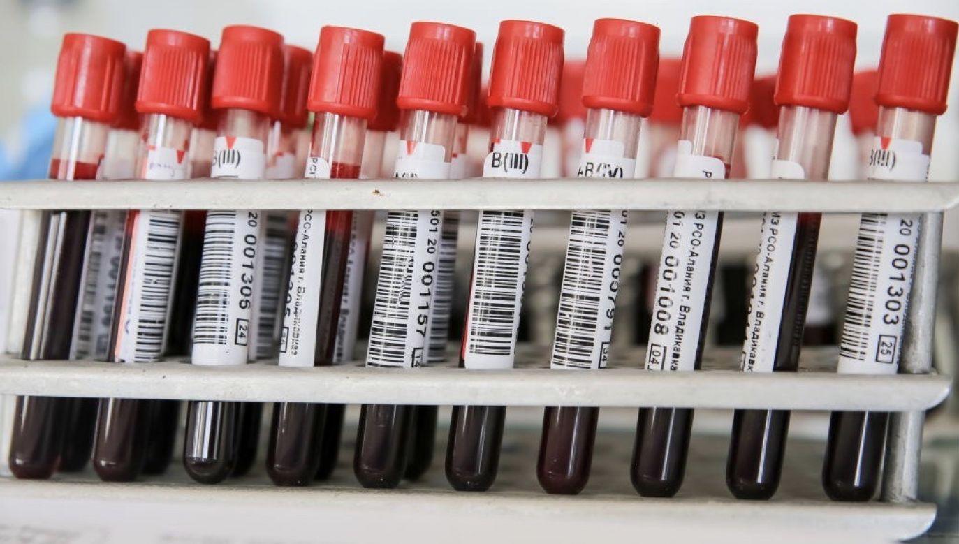 To najczęstszy nowotwór krwi osób dorosłych (fot. Alexander Pogozhev\TASS via Getty Images)