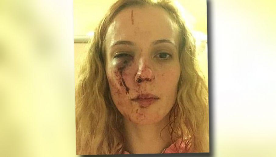 b94c9c6a0939e2 Wielka Brytania: Rasistowski atak na kobietę w Doncaster - tvp.info