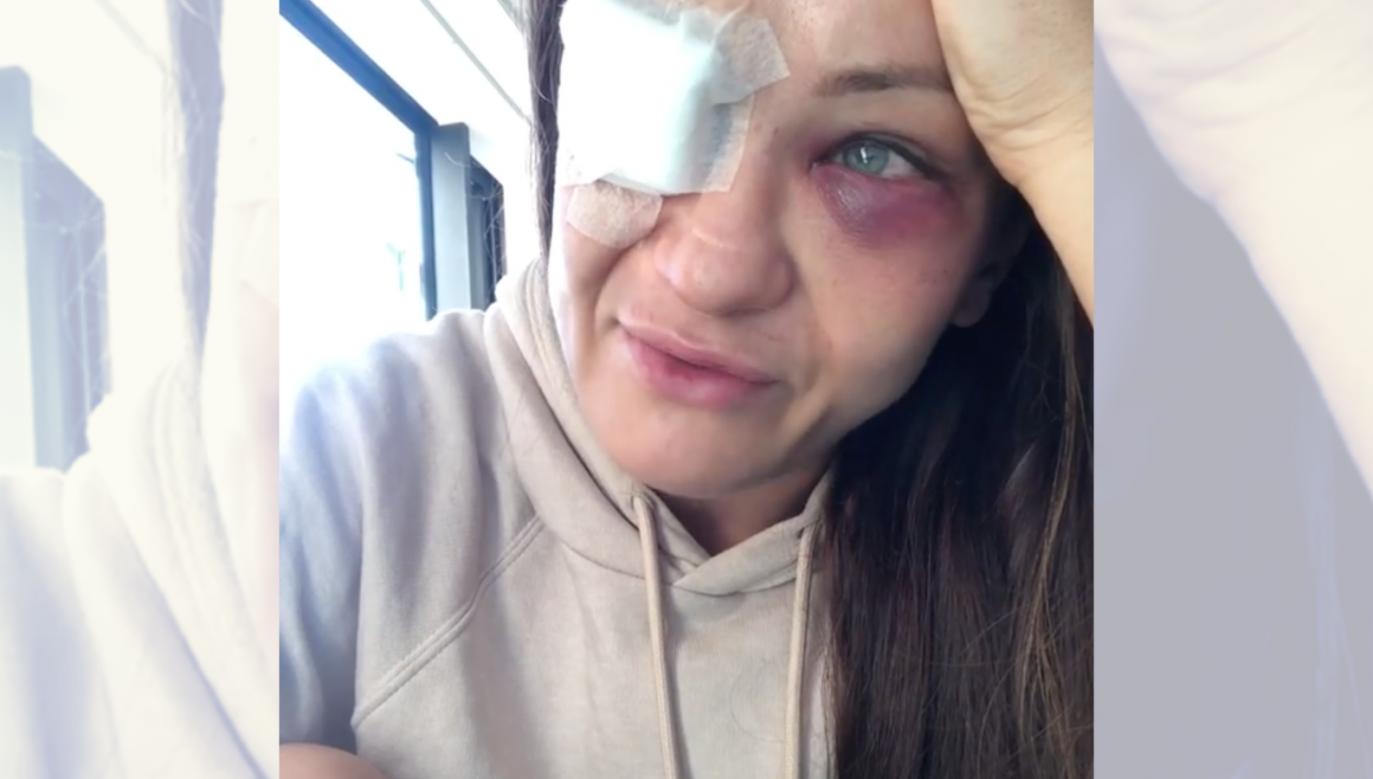 Opowiadając o kontuzji oka, Karolina Kowalkiewicz z trudem powstrzymywała łzy... (fot. Instagram.com)