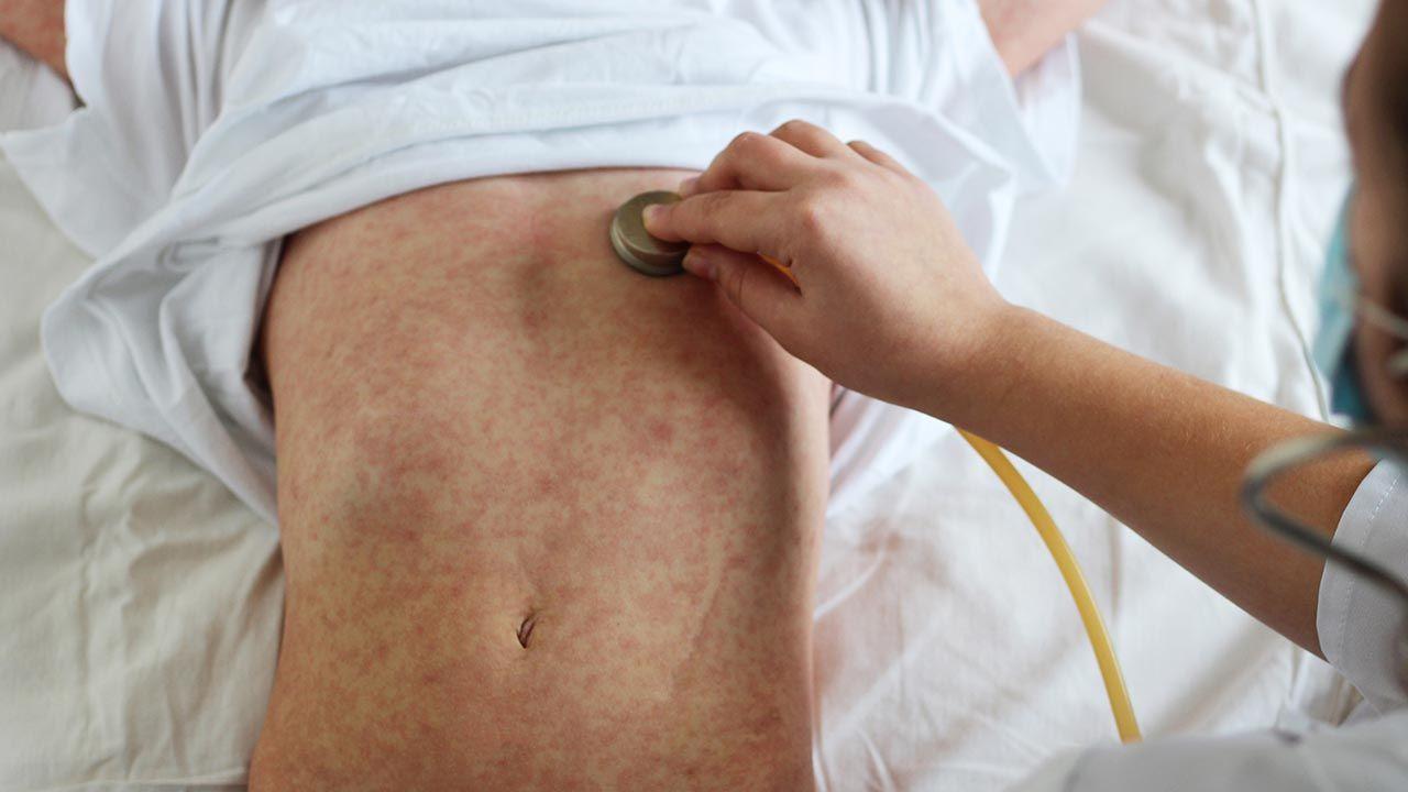 W wielu krajach kampanie szczepień zostały wstrzymane w pierwszych miesiącach 2020 roku (fot. Shutterstock/fotohay)