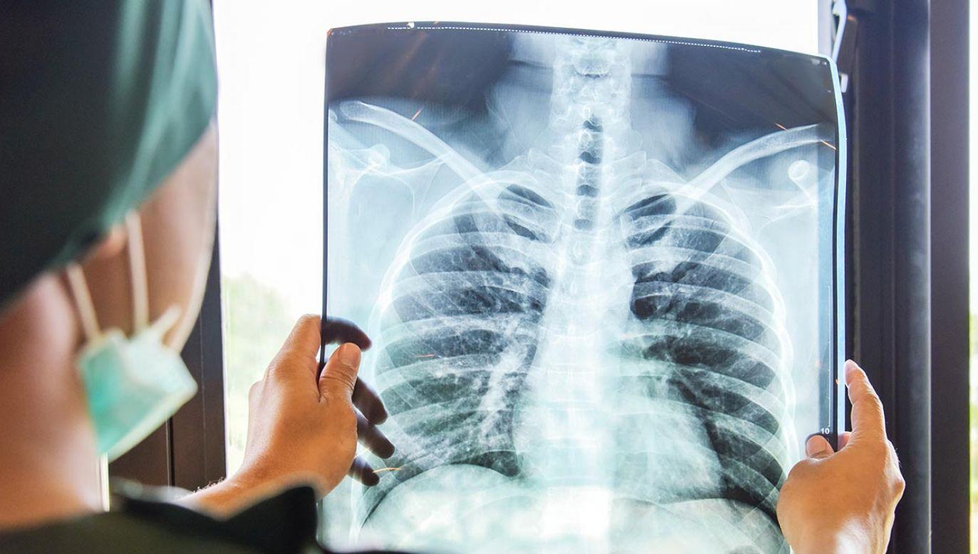 Osoby po przebytej chorobie COVID-19, posiadające skierowanie od lekarza ubezpieczenia zdrowotnego na rehabilitację leczniczą mogą dzwonić do szpitala pod numery: 77 40 80 169 i 77 40 80 168   (fot. Shuttertstock/Supawadee56)