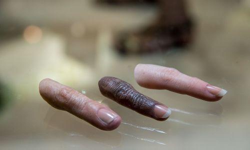 Protetyczne załączniki palców dla kwantowej i-kończyny Touch Bionics prezentowane w 2015 r. w Lyonie. Urządzenie, elektrycznie zasilana ręka protetyczna z pięcioma niezależnie zasilanymi palcami dla osób z niedoborami kończyn górnych, była wtedy pierwszą ręką bioniczną, która została zatwierdzona przez francuski system opieki zdrowotnej. Fot. Bruno Vigneron / Getty Images