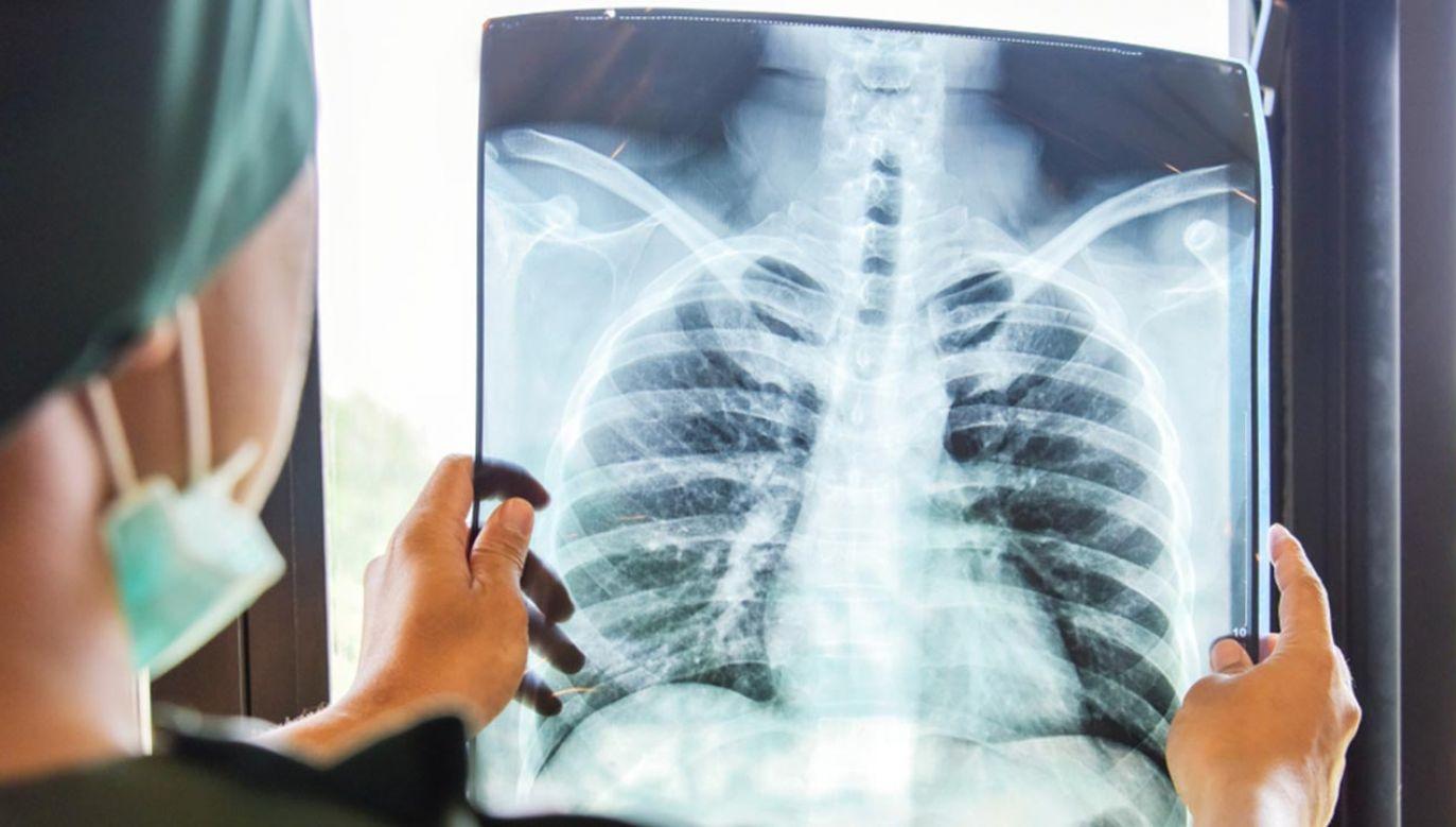 Wyszkoleni w Polsce lekarze dokonali udanego przeszczepu (fot. Shutterstock/ Autor: Studio4dich)
