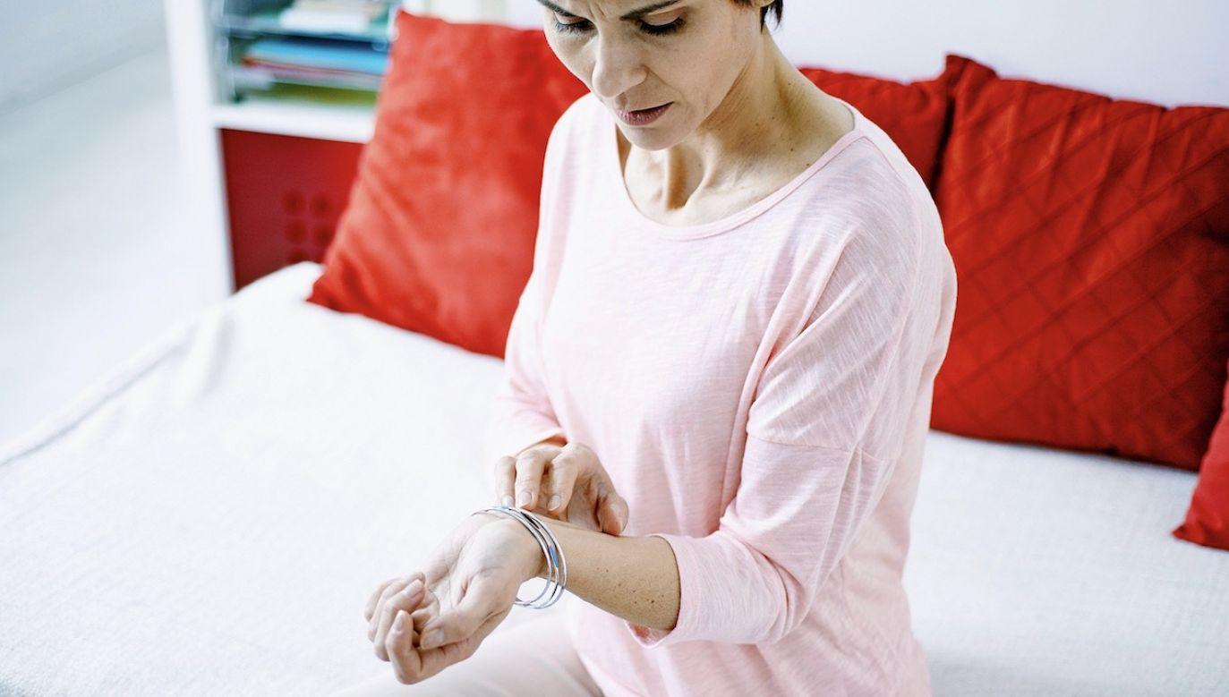 Atopowe zapalenie skóry to jedna z najczęstszych przewlekłych chorób skóry (fot. arch.PAP)